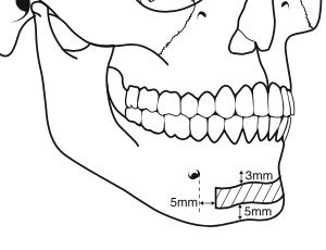 greffe-osseuse-prelevement-symphysaire-chirurgie-pre-implantaire-docteur-bontemps