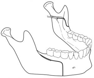 osteotomie-sagittale-de-la-branche-montante-mandibulaire-1-chirurgie-orthognatique-docteur-bontemps